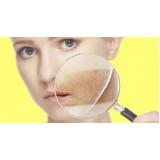 quanto custa tratamento eficaz para manchas no rosto Vila Ida