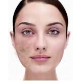 quanto custa tratamento para cicatriz de acne no rosto Jockey Club