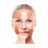 quanto custa tratamento para clarear a pele Sacomã
