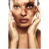 quanto custa tratamento para manchas na pele Socorro