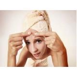 quanto custa tratamento para marcas de acne no rosto Interlagos