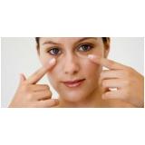 quanto custa tratamento para pele do rosto com manchas Alto de Pinheiros