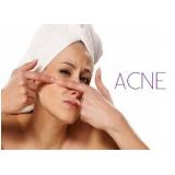 quanto custa tratamentos para cicatriz de acne Morro dos Ingleses