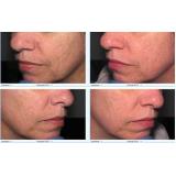 radiofrequência para acne