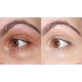 radiofrequência para área dos olhos