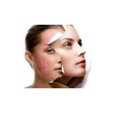 tratamento para rejuvenescimento da pele do rosto