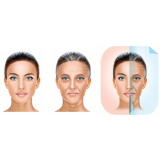 rejuvenescimento facial md codes Campo Belo