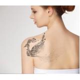 remoção de tatuagem a laser preço Alto de Pinheiros