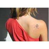 remoção de tatuagem a laser Vila Andrade