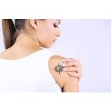 remoção de tatuagem em são paulo Sumarezinho