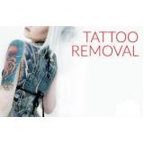 remoção de tatuagem em sp preço Vila Parque São Jorge