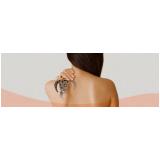 remoção de tatuagem preta a laser Itaquera