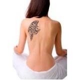 remoção de tatuagem preta Chácara Itaim