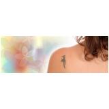 remoção de tatuagens coloridas Vila Nogueira