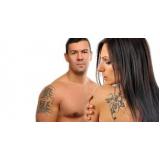 remoção de tatuagem preta a laser
