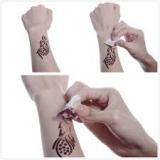 retirar tatuagem a laser Cidade Monções