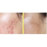 sculptra para cicatriz de acne preço Moema