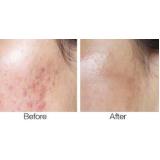 sculptra para cicatriz de acne