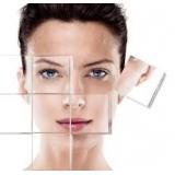 Tratamentos com Laser Co2