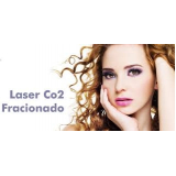 sessão de laser co2 fracionado para cicatriz Vila Ida