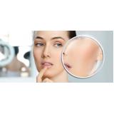 tratamento a laser para cicatriz Parelheiros