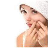 tratamento a laser para cicatrizes de acne Campo Limpo