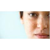 tratamento a laser para manchas na pele Bixiga