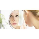 tratamento a laser para marcas de acne Vila Nogueira