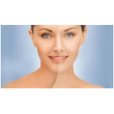 tratamento a laser para o rosto Chácara Maranhão