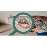 tratamento a laser para remoção de tatuagem preço Alto de Pinheiros