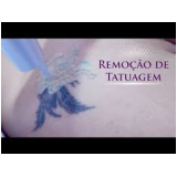 tratamento a laser para remoção de tatuagem Chácara Maranhão