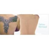 tratamento a laser para tirar tatuagens Morro dos Ingleses