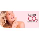 tratamento com laser co2 fracionado para rugas Higienópolis