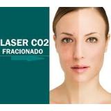 tratamento com laser de co2 fraccionado para estrias Vila Gertrudes