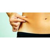 tratamento com radiofrequência para gordura localizada Jardim Edith