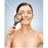 clareamento de manchas no rosto