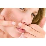 tratamento para clarear a pele