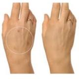 tratamento para manchas na pele