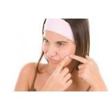 tratamento de cicatrizes de acne preço Bixiga