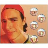 tratamento de cicatrizes de acne Sacomã