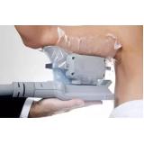 tratamento de criolipólise Parelheiros