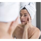 tratamento de marcas de acne Bixiga