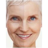 tratamento de pele a laser preço Bixiga
