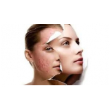 tratamento de pele com acne Parelheiros