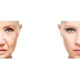 tratamento de rejuvenescimento da pele Vila Madalena