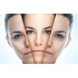 tratamento de rejuvenescimento pele em são paulo preço Morro dos Ingleses