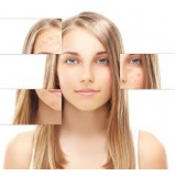 tratamento estético para acne Itaim Bibi