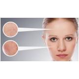 tratamento para acne a laser Brooklin