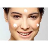 tratamento para acne e manchas Jardim São Luiz