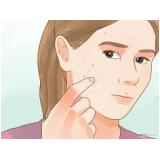 tratamento para cicatriz de acne no rosto preço Vila Pompéia